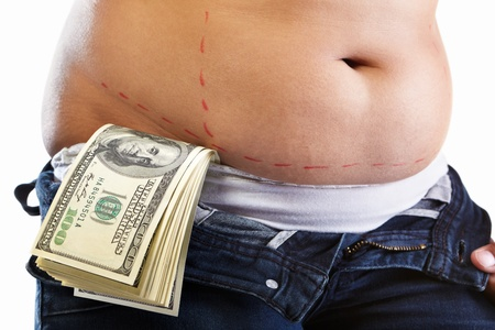 Overweight female stomach being marked by red marker and losts of 100 dollar bills