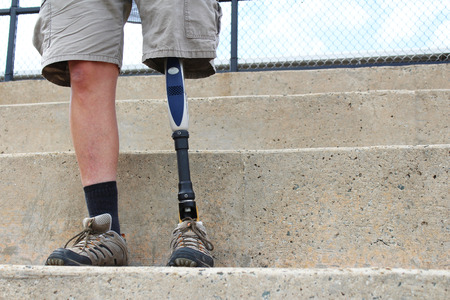 amputation: Standing man with prosthetic leg, detail