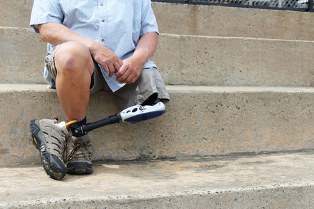 Amputado sentado, detalle, sobre las gradas de concreto