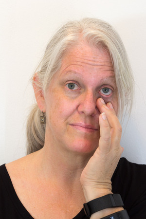 Mature woman, hand pulling down eyelid, looking ahead, natural no makeup, neutral background, vertical aspect