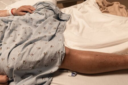 Single leg of an amputee man in a hospital gown and bed, disabled veteran, copy space, horizontal aspect