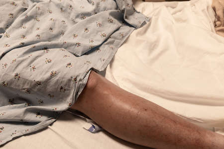 Single leg of an amputee man in a hospital bed partially covered with a gown, disabled, veteran, cancer, coronavirus, healthcare background, horizontal aspect