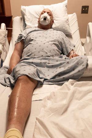 Man in a hospital bed asleep wearing a respirator, leg amputee, coronavirus, cancer, blood clots, vertical aspect