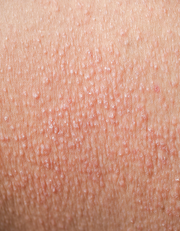 Skin rashes that are allergic to sweat, cosmetics Or virus Cause itching.