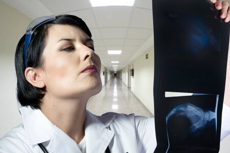 Female doctor looking at an x-ray photo