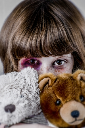 Child abuse concept, Sad girl. Violence, despair. Stock Photo