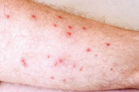 sarpullido: Hombre con alergia visible en las piernas