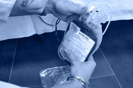 phlebotomist: Blood bag in the hands of nurses ; Bag of blood in the hands of nurses