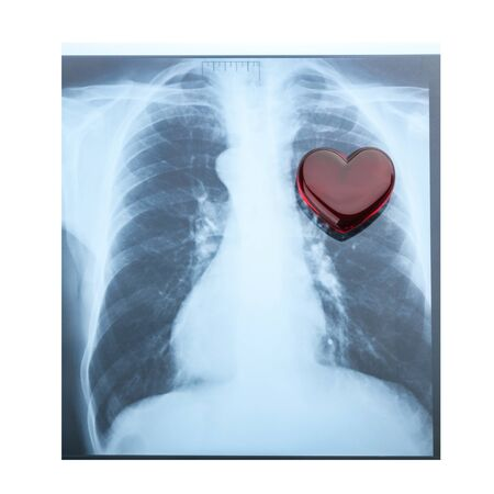 chest x ray: x-ray red heart of human Stock Photo