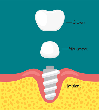 Structure of the dental implant.