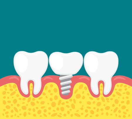 vector illustration of a teeth with dental implant.