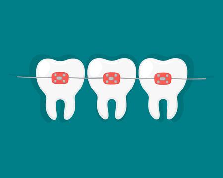 Teeth with dental braces. Vector illustration.