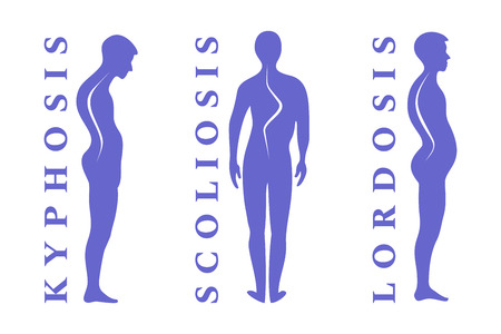 Diseases of the spine. Scoliosis, lordosis, kyphosis. Body posture defect. Human silhouettes isolated on white. Vector illustration.