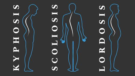 Diseases of the spine. Scoliosis, lordosis, kyphosis. Body posture defects. Back curvature. Spinal deformity types. Medical disease infographic. Diagnostic symptom. Vector illustration