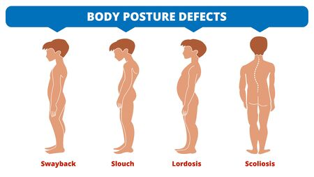 Diseases of the spine. Scoliosis, lordosis, swayback, slouch. Body posture defects. Spinal deformity types. Medical disease infographic. Diagnostic symptom. Boys silhouette. Vector illustration
