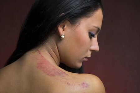 the scar: Bruise on a female back close up