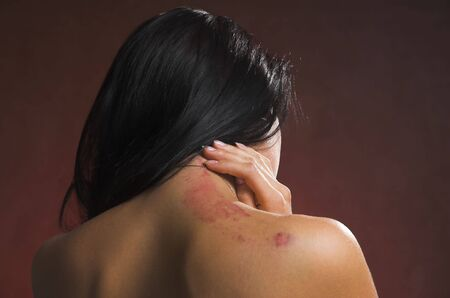 Bruise on a female back close up