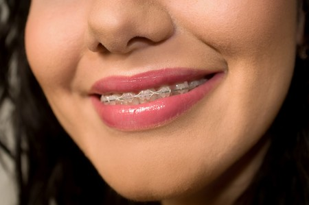 fix jaw: Teeth in brackets close up Stock Photo