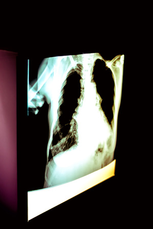 X-ray image of human lungs photo