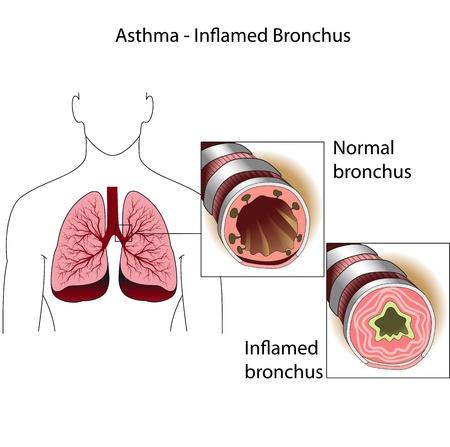 asthme: Les bronches de personne en bonne sant� et une personne souffrant d'asthme bronchique affiche m�dicale Illustration
