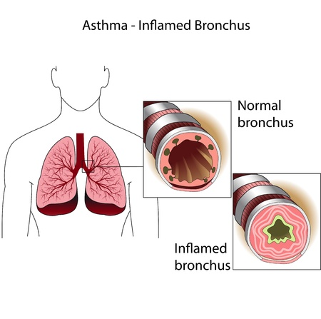 asthma: The bronchial tubes  of healthy person and a person suffering from bronchial asthma  Medical poster