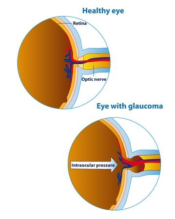 cornea: Illustrazione di un bulbo oculare in uno stato di salute e nel glaucoma