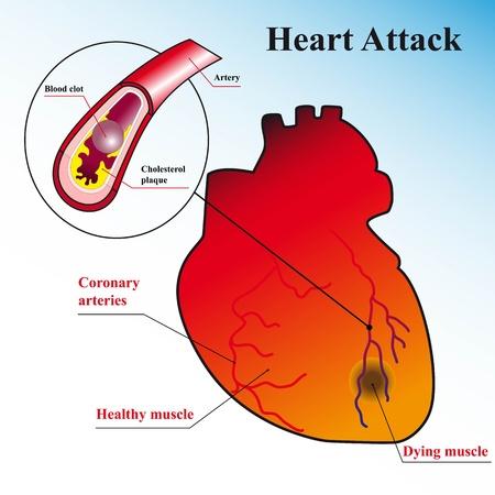 heart disease: Explicación esquemática del proceso de ataque al corazón