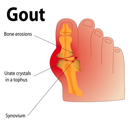 dolore ai piedi: Un piede umano con articolazione infiammata Vettoriali