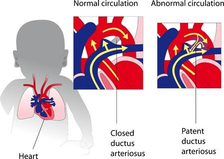 Patent ductus arteriosus  Medicine poster Illustration