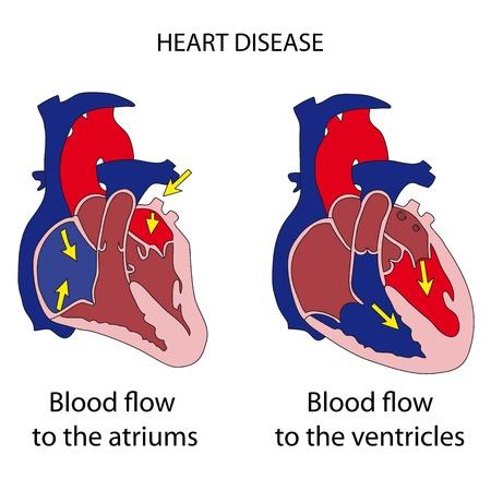 heart surgery: Heart 1