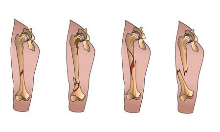 ortopedia: Tipos de la pierna fracturas de huesos Vectores