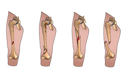 Types of bone fractures leg Vector
