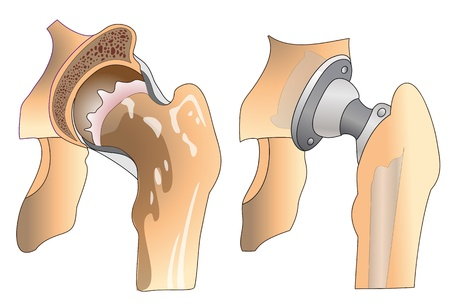 groin: Hip arthroplasty  Hip joint before and after surgery
