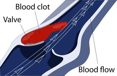 une thrombose veineuse