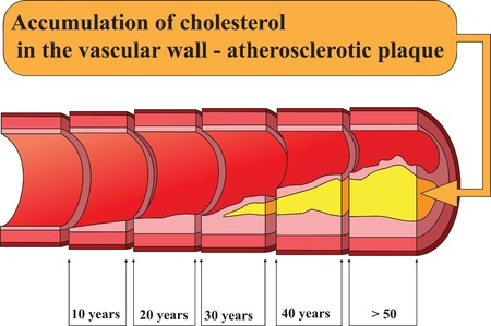 Accumulation of cholesterol in vascular walls  Poster Vector