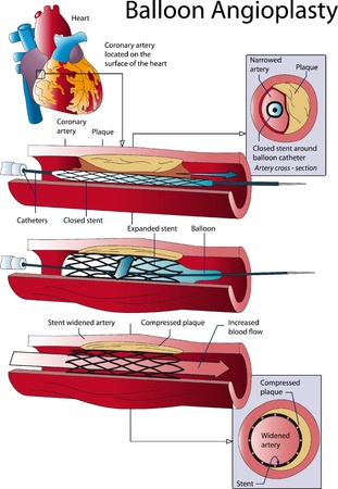 atherosclerosis: Balloon Angioplasty Illustration