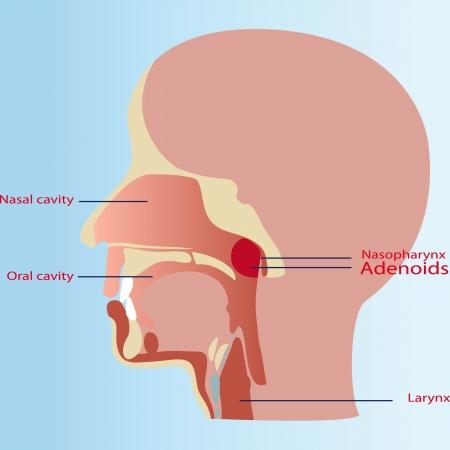 angina: Las adenoides en un niño