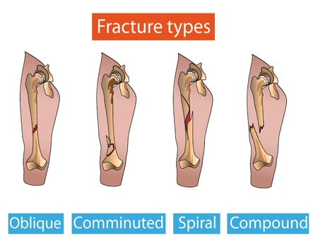human bones: Types of bone fractures leg  Medical poster