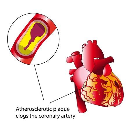 Atherosclerotic plaque Stock Vector - 20333976