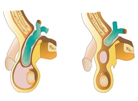 testicles: Un saliente de la hernia inguinal de contenidos cavidad abdominal a trav�s del canal inguinal Vectores
