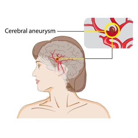 Disease of the brain - cerebral aneurysm  Medical poster