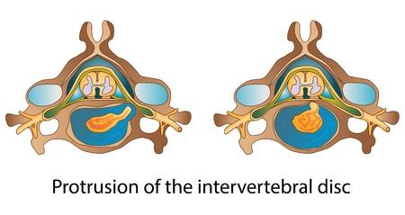 lombaire: Protrusion du disque intervert�bral