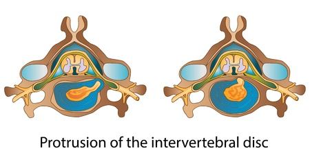 intervertebral disc: Protrusion of the intervertebral disc