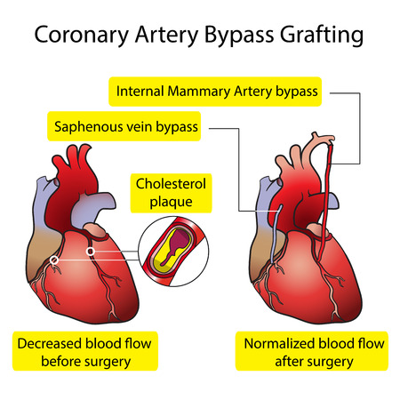 artery: Coronary Artery Bypass Grafting Medical poster