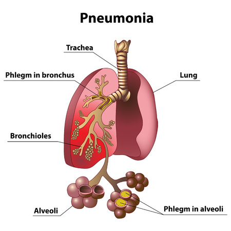 Phlegm in the lungs during pneumonia Vector
