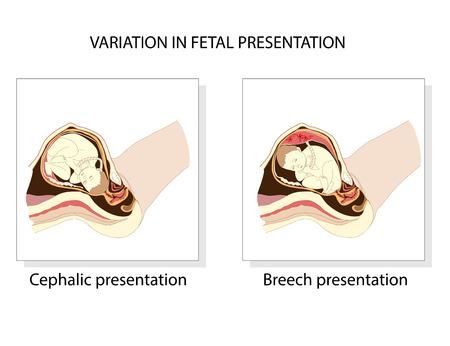 breech: Variation in  fetal presentation. Cephalic and Breech presentation Illustration