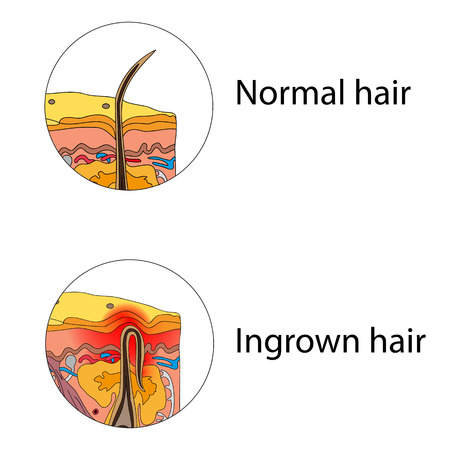 Ingrown and normal hair Illustration
