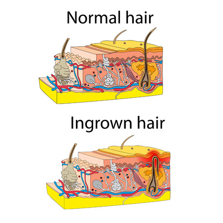 dermatologist: Skin with ingrown hair. Cross section