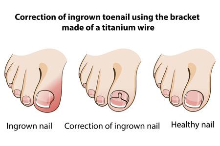 Correction of ingrown nail Stock Illustratie