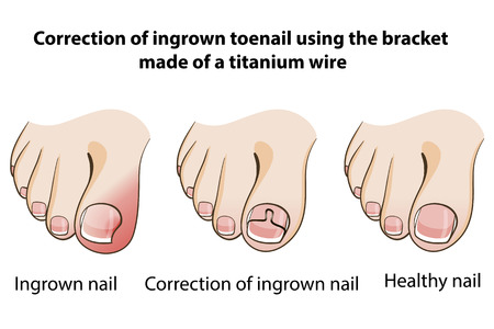 Correction of ingrown nail Illustration
